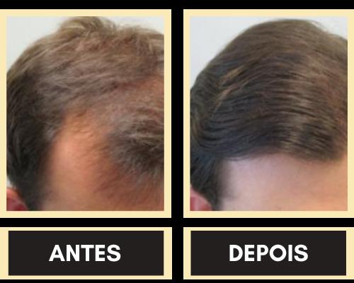 trinoxidil antes e depois
