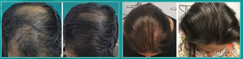 strong hair funciona